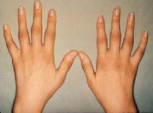 romatoid-artrit-belirtilerii-4445