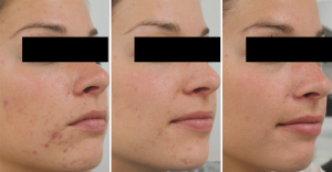 acne-treatments-miami