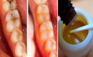 diş-çürüklerinin-tedavisi-300x186